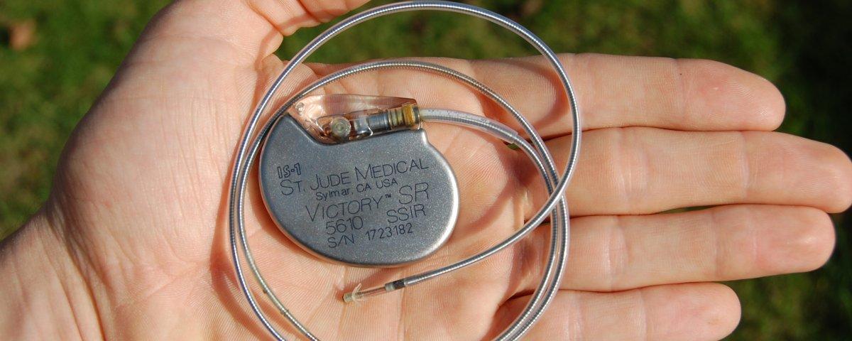 Image result for desfibrilador implantado