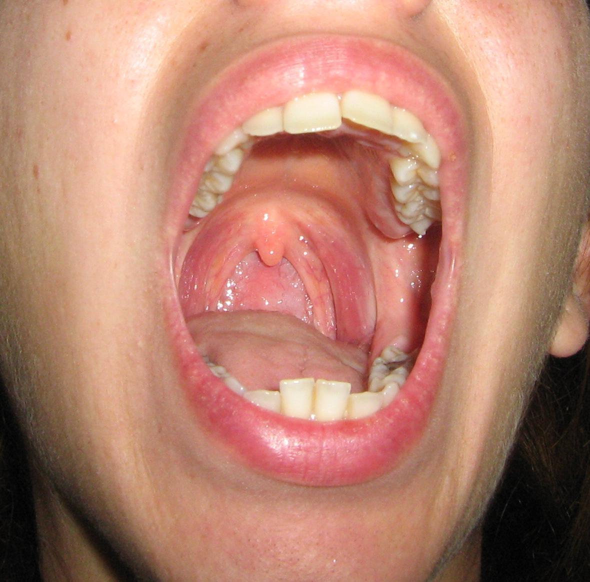 Amigdalas Inflamadas Sintomas